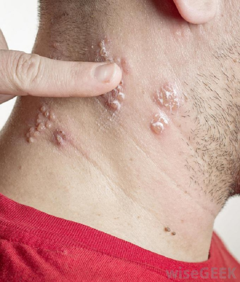 Home Remedies Shingles Scars