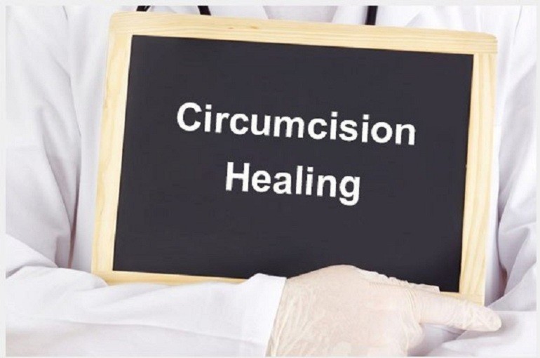 Circumcision Method