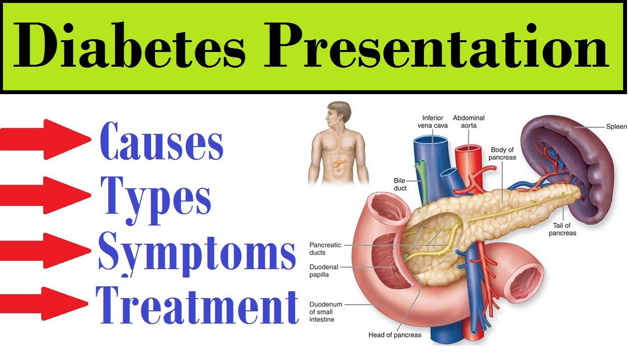 Remedies Diabetes