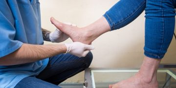 Flat Feet Treatments