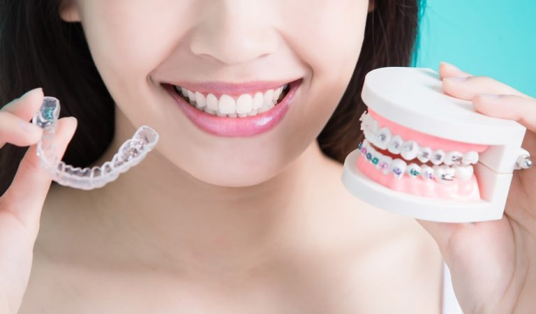 Make Your Dentition What You Want It: Fit a Veneer