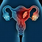 Treat Uterine Fibroids