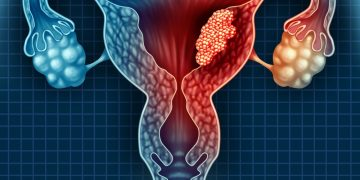 Treat Uterine Fibroids