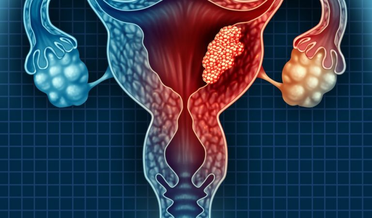 Effective Ways to Treat Uterine Fibroids Naturally