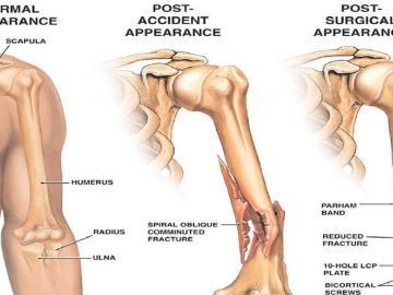 Humerus Fractures pain
